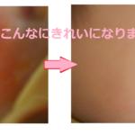 乳児湿疹に評判のいいアロベビーとパックスベビーを1週間使った口コミ。効果大だったのはどっち?
